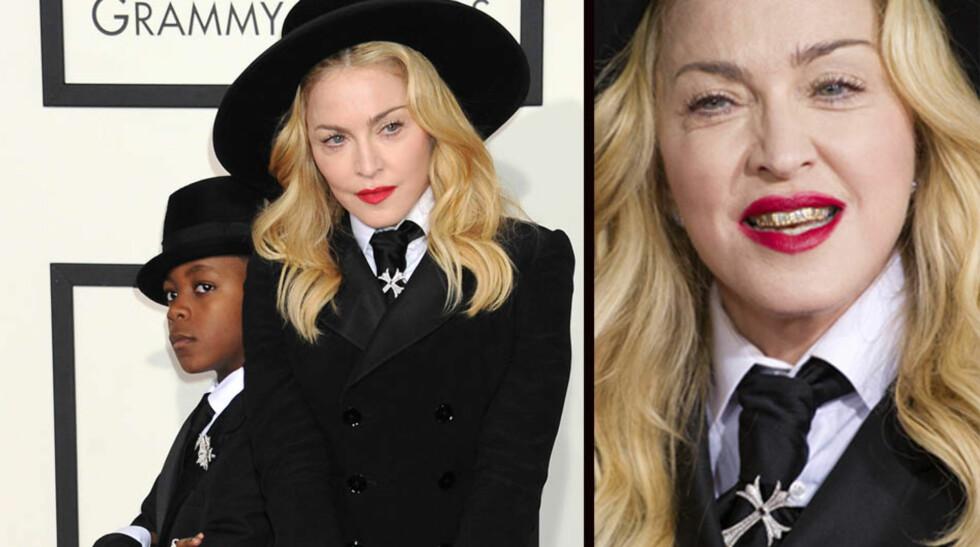 <strong>FLEKKET TENNER:</strong> Popstjernen Madonna overrasket da hun åpnet munnen på den røde løperen og avslørte sine gull-grillz.  Foto: NTB Scanpix