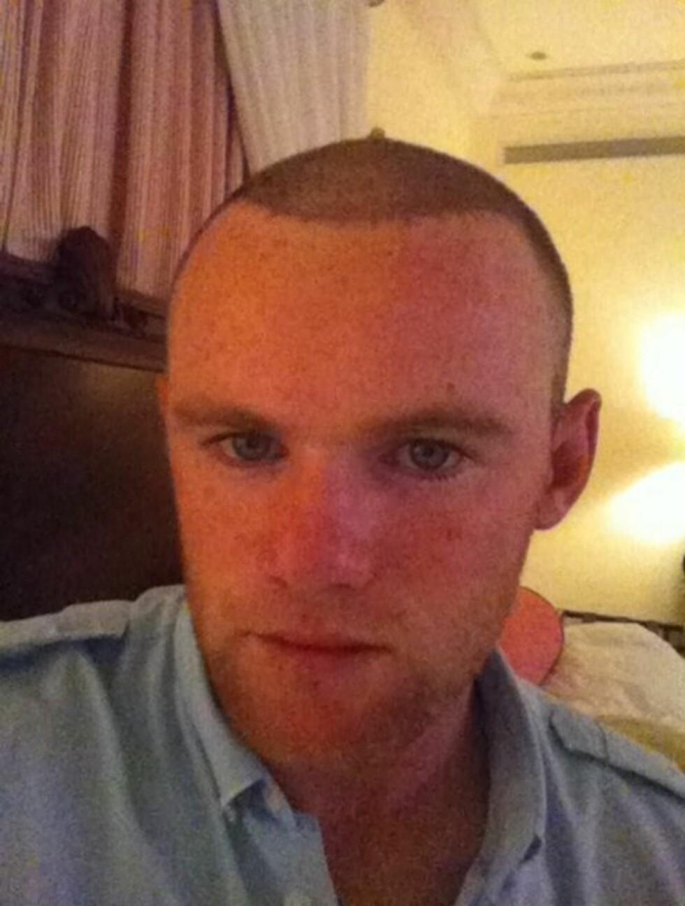 KJØPTE NYTT HÅR: Wayne Rooney svidde av flere hundre tusen kroner på hårtransplantasjon før han reiste på ferie. Nå lar han Twitter-fansen følge ham på ferden mot endelig resultat. Foto: Twitter