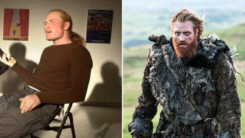 FØR OG NÅ: I 2001, da Kristofer Hivju spilte i stykket «Er du med eller ute?», var det kun hodehåret han hadde latt gro fritt. De par siste årene er det flammerøde skjegget hans blitt et internasjonalt varemerke, blant annet gjennom rollen hans i «Game of Thrones». Foto: NTB Scanpix/ HBO