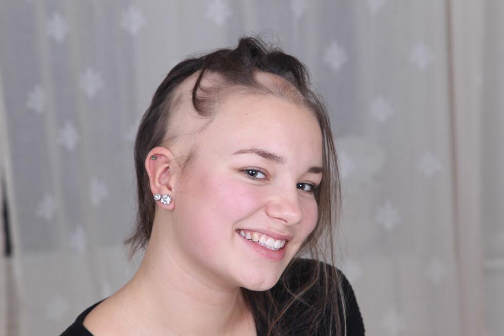 <strong>MODIG:</strong> Madelen har alopecia aeata, en sykdom som gir betennelser i hårsekkene hennes slik at håret faller av.  Foto: SVEND AAGE MADSEN/SE OG HØR