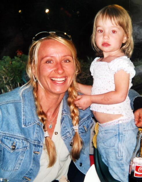 <strong>FELLES SKJEBNE:</strong> Hege Sofie Gulseth ble fortvilet da hun oppdaget at datteren Madelen mistet hår. Hennes egen barndom ble vanskelig - fordi  hun har den samme lidelsen. Foto: PRIVAT/SE OG HØR