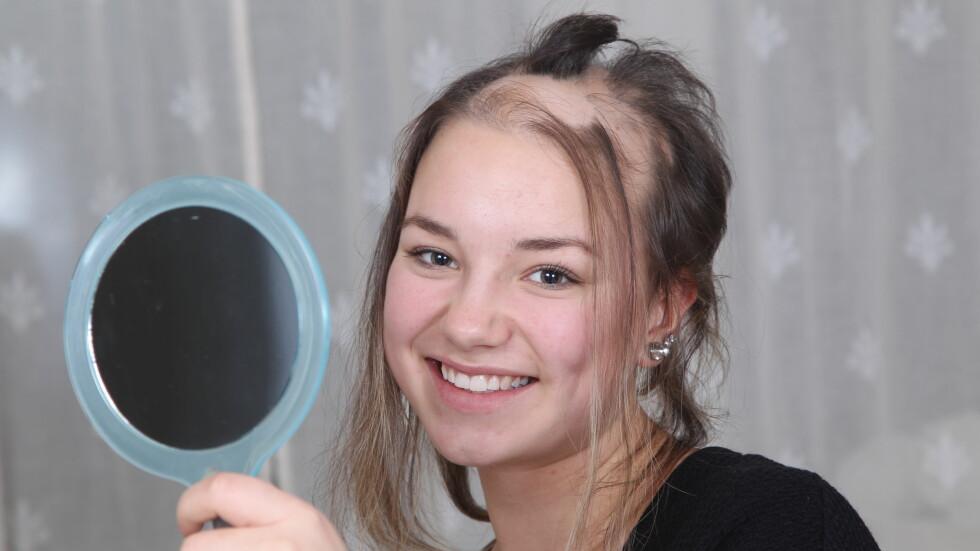<strong>VELGER ÅPENHET:</strong> 14 år gamle Madelen Gulseth Christensen fra Skien har mistet hår hele livet – og store deler av hodebunnen hennes er i dag skallet. På sosiale medier hylles hun nå for sin åpenhet omkring det å ha alopecia. Foto: SVEND AAGE MADSEN/SE OG HØR