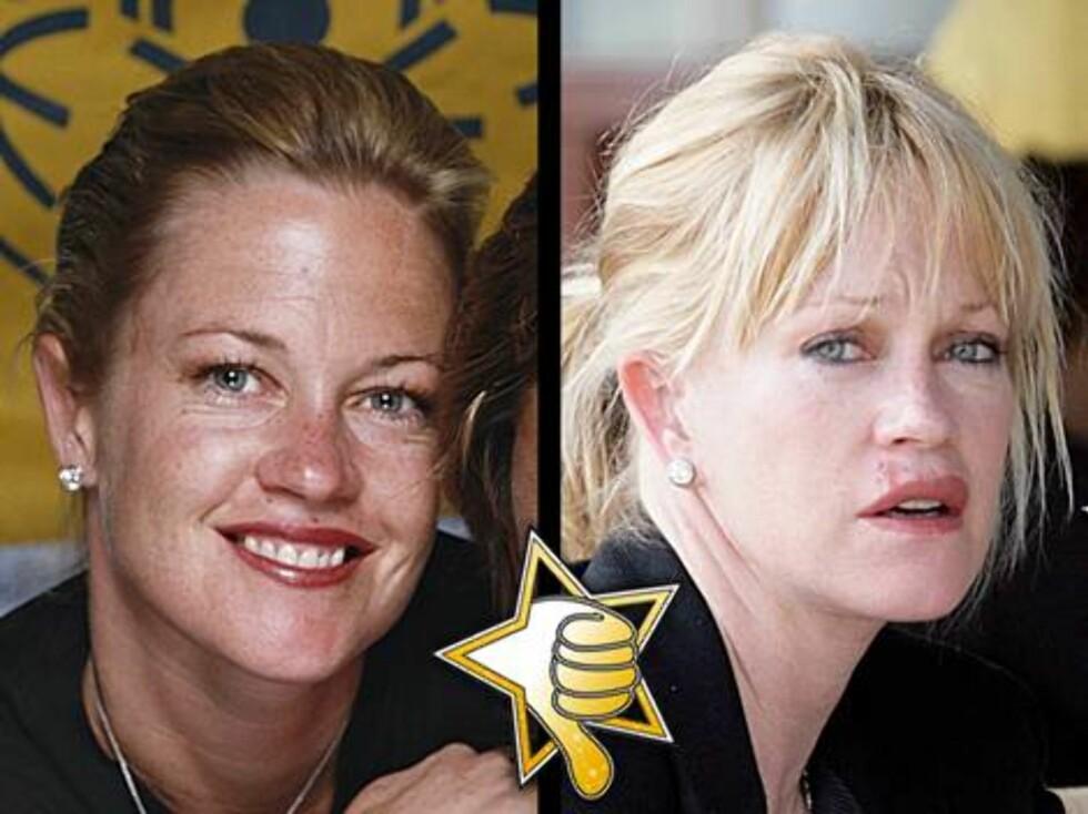 NARKOTIKATRØBBEL: Narko-problemer har også forvandlet Melanie Griffith fra en vakker stjerne til en grå mus...