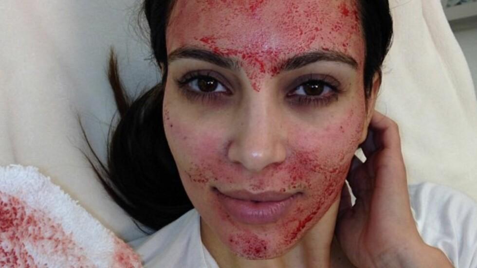 VAMPYR-BEHANDLING: For å unngå rynker har Kim Kardashian smurt seg inn med sitt eget blod under en såkalt vampyr-behandling. Hun la selv ut bilder på Instagram.  Foto: Instagram
