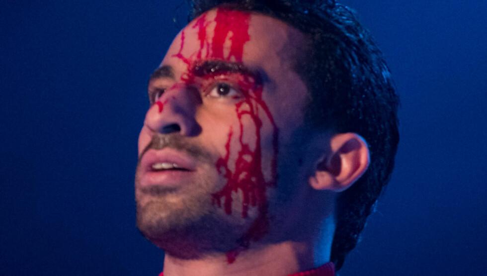 SKADET: Under sin dansefremføring skadet Navid seg, og måtte fortsette med blod rennende nedover ansiktet.  Foto: Glenn Svendsen/TV 2