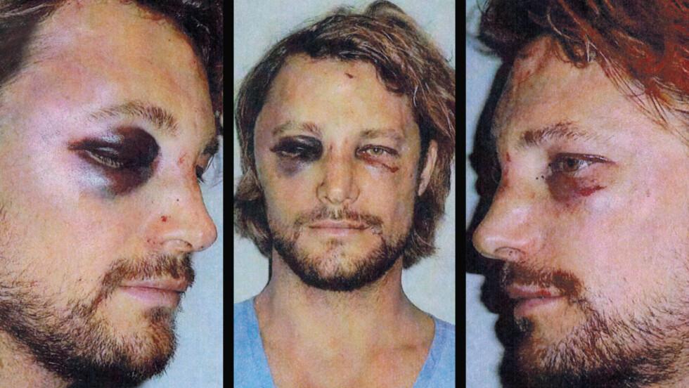 MEDTATT: Gabriel Aubry hadde store skader etter slåsskampen med Olivier Martinez. Politiet har likevel konkludert med at han startet krangelen og blir beskrevet som den mistenkte.  Foto: All Over Press