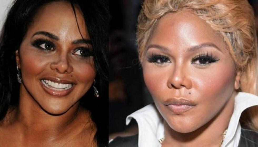 INNGREP: Eksperter hevder at rapperen skal ha utført flere kosmetiske inngrep på ansiktet. Bildet til venstre er tatt i 2009, mens bildet til høyre ble knipset under Nina Skarra-visningen i forrige uke. Foto: Stella Pictures / All Over Press