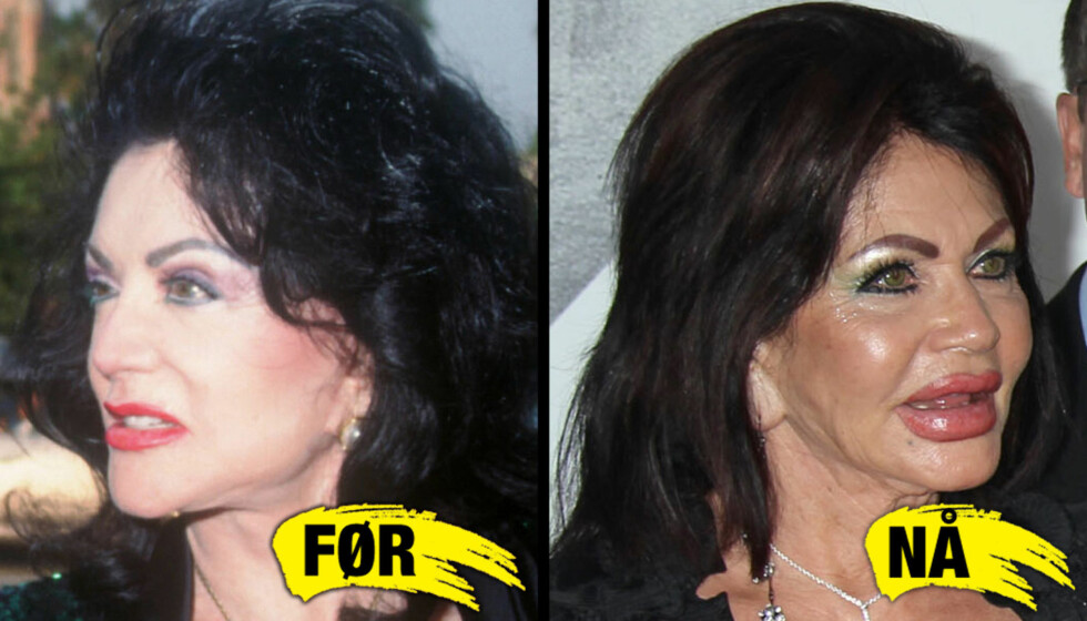 NYE LEPPER: Jackie Stallones lepper har forandret seg voldsomt siden bildet i 1995 til venstre til bildet tatt i Hollywood denne uken på bildet til høyre.  Foto: All over press