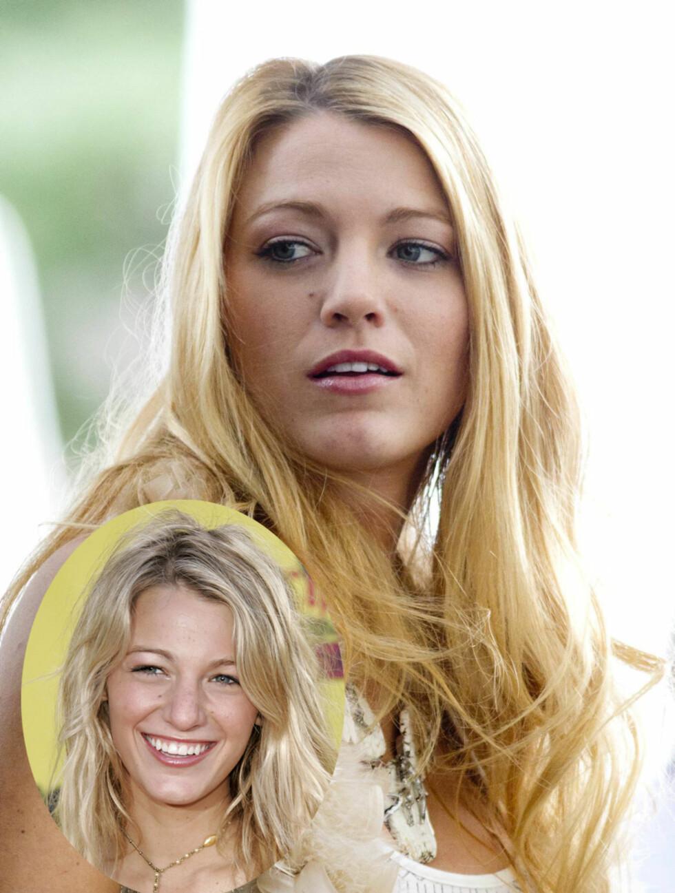 TYNNERE: Blake Livelys nese har blitt tynnere siden hun var med på Teen Choice Award i 2005.  Foto: All Over Press/Stella Pictures