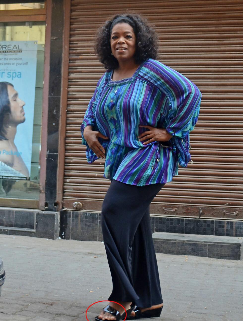 <strong>EKSTRA TÅ:</strong> Oprah Winfrey har en ekstra tå på sin venstre fot. Foto: Stella Pictures