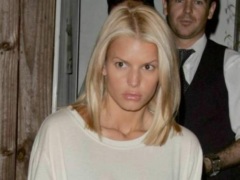 Jessica likte ikke de oppsvulmede Botox-leppene sine. Her er løslokkene borte. Foto: All Over Press