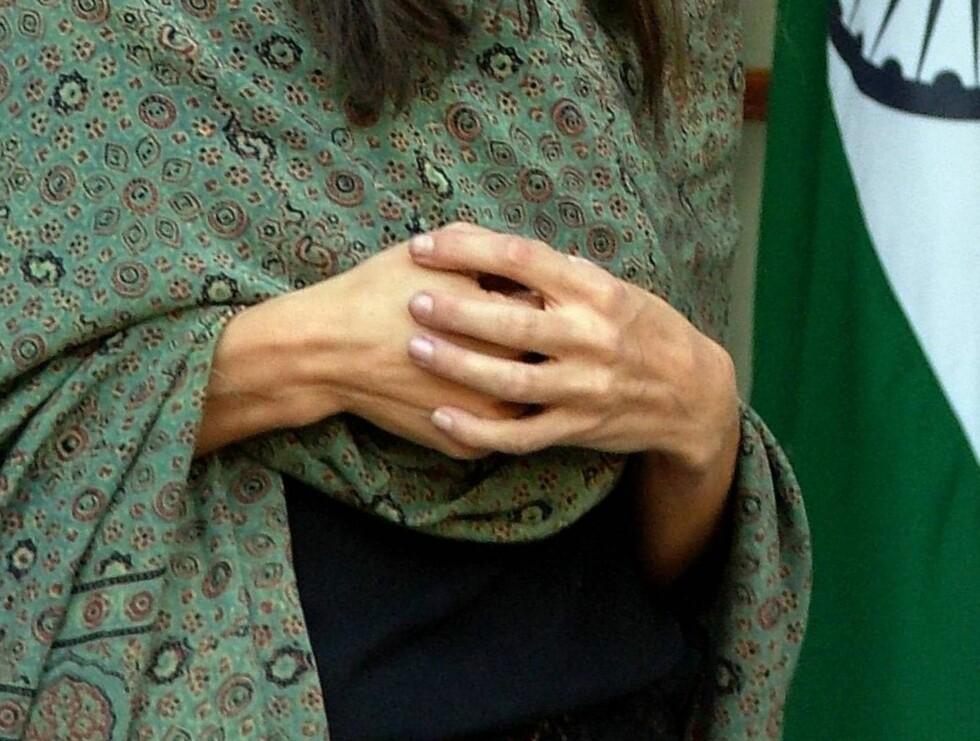 SKINN OG BEIN: Angelina blir tynnere og tynnere. Under et besøk i India før jul viste hendene hennes for all verden at superstjernen trenger hjelp. Foto: All Over Press