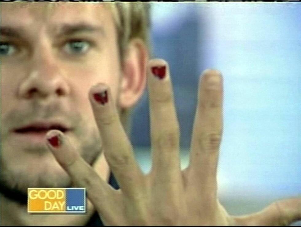 """RØDE NEGLER: Dominic Monaghan fra TV-serien """"Lost"""" liker å lakkere neglene. Her viser han tre røde negler på et TV-show for to år siden. Ikke akkurat vakkert.... Foto: All Over Press"""
