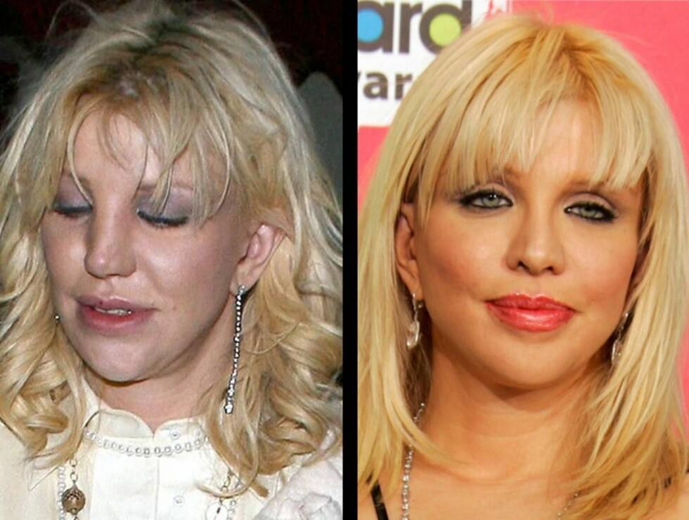OPERERT: Man skulle gjerne trodd det skulle vært omvendt, men bildet til venstre er Courtney etter skjønnhetsoperasjonen - på filmpremiere! Foto: All Over Press
