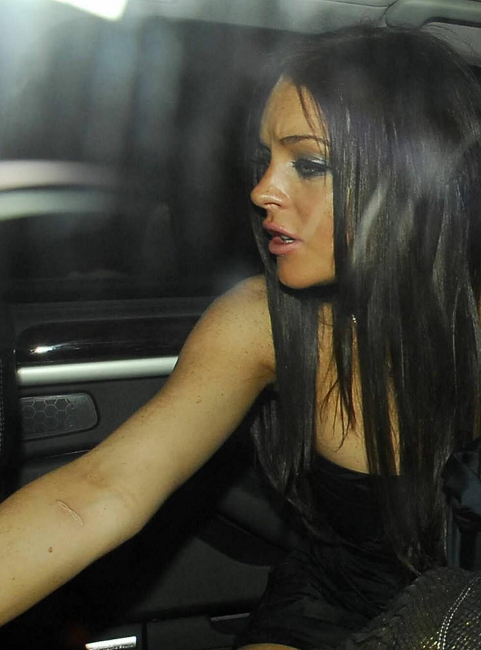 ARR: Lindsays høyre arm har et stort arr som går tvers over armen.  Foto: colourpress.com