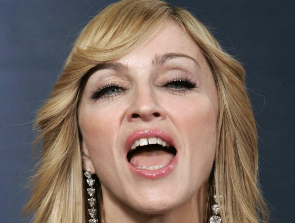 KJEFT: En svensk dyrevernsorganisasjon reagerer kraftig på H&Ms samarbeid med Madonna. De mener pelsbruken hennes strider mot kleskjedens anti-pelspolicy. Foto: AP