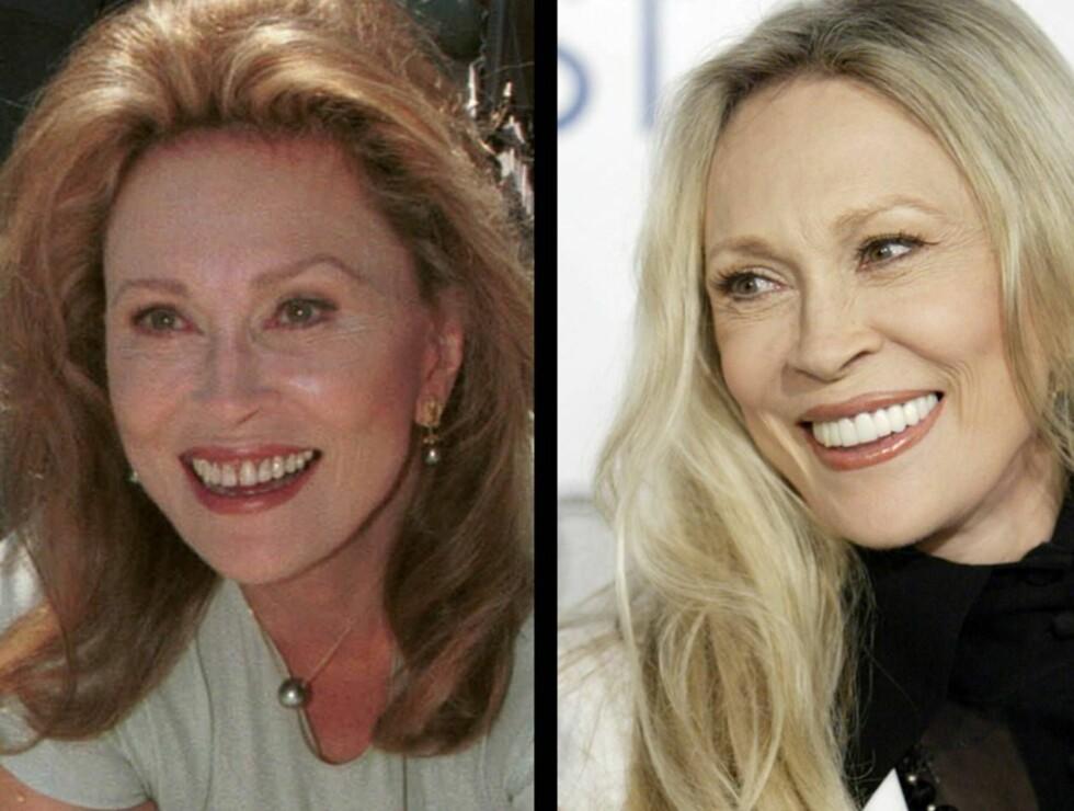 SMILTE: Faye før og etter de uttallige tannlegebesøkene. Foto: AP/Scanpix