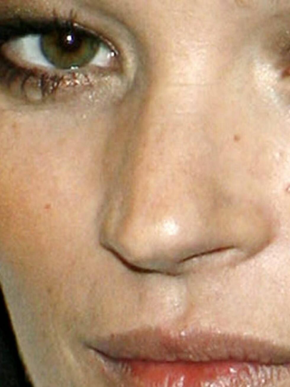 KROKETE: Etter to operasjoner, er Kate Moss' nese både krokete og ujevn. Legg merke til hakket i høyre nesebor. Foto: AP/Scanpix