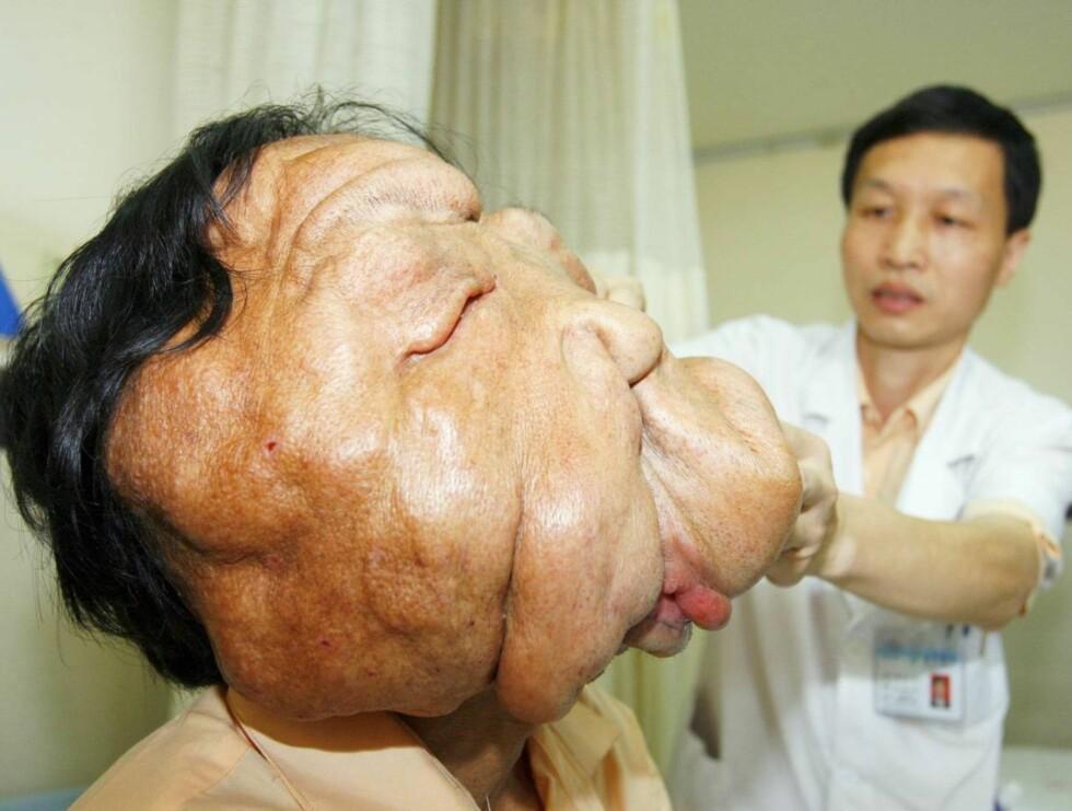 FØR: Svulsten fikk vokse fritt da den fattige kinesiske gutten gjemte seg i skam. Foto: Scanpix