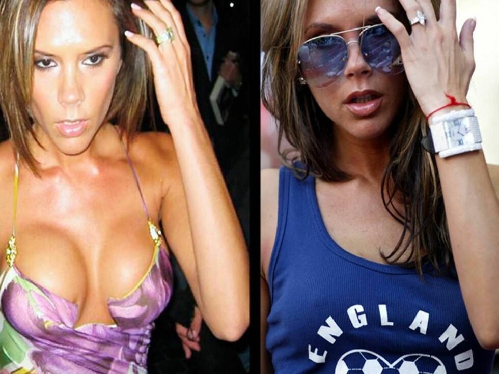FORSKJELL: Victoria nå og Victoria da. Forskjellen er stor, og stadig økende. Foto: Mirrorpix
