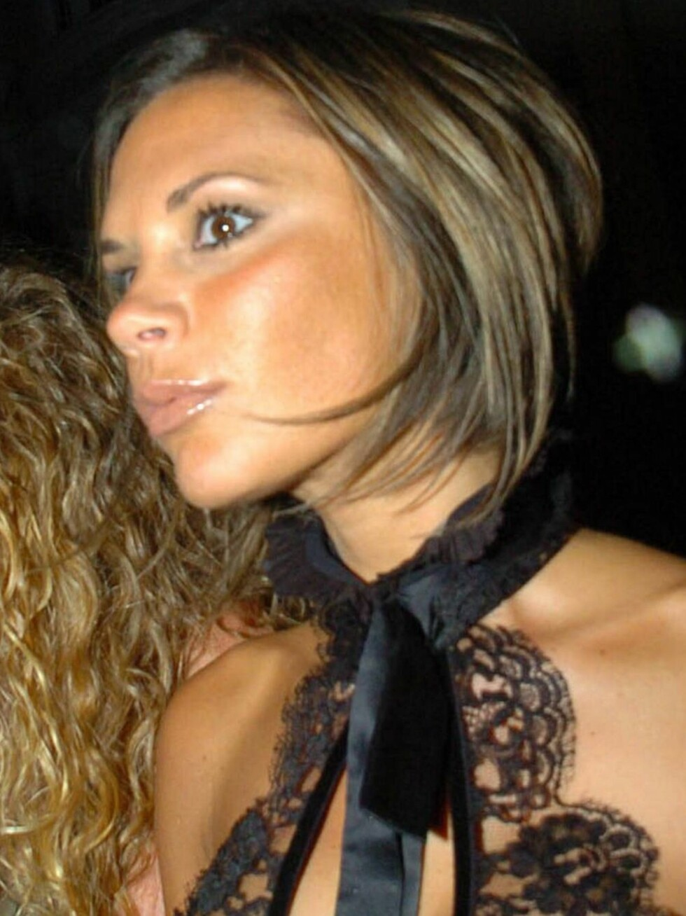 KORT HÅR: Victoria slo ut det lille som er igjen av håret... Foto: STELLA PICTURES