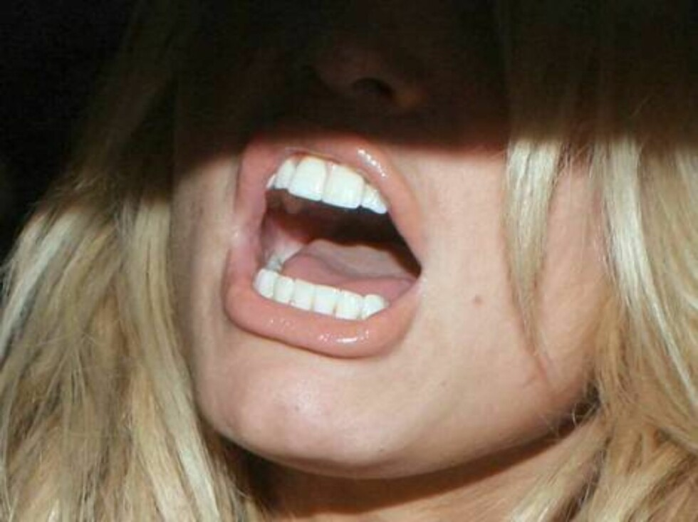 Jessica Simpson 's new lips after injection give a new look to the soon divorced star January 14, 2006 X17agency exclusive / ALL OVER PRESS Foto: All Over Press