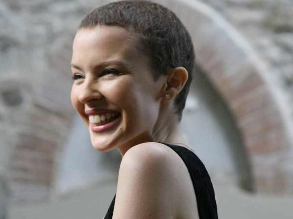 UKJENT KYLIE: Popstjernen mistet håret da hun ble behandlet for kreft. Men hun kledde kort sveis også! Foto: AP/Scanpix