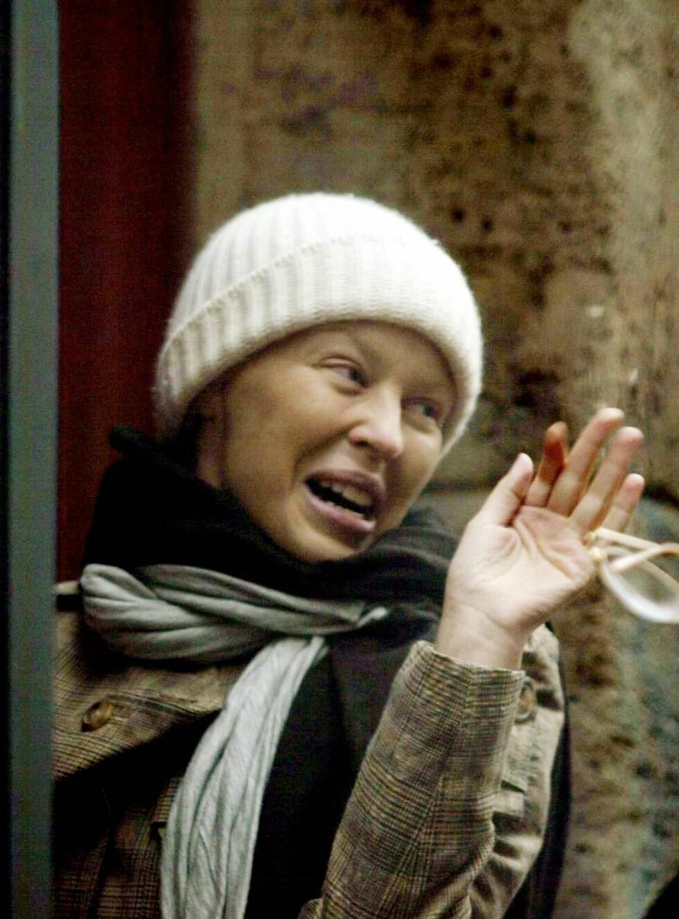KREFTSYK: Kylie Minogue har vært tydelig preget av kreftsykdommen, men nå er hun i følge britiske aviser på bedringens vei. Håret som falt av etter cellegiftbehandlingen er på vei tilbake, og mot slutten av året skal popstjernen holde flere konser