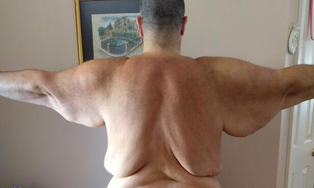 Trygler om hjelp for å bli kvitt 35 kilo løs hud