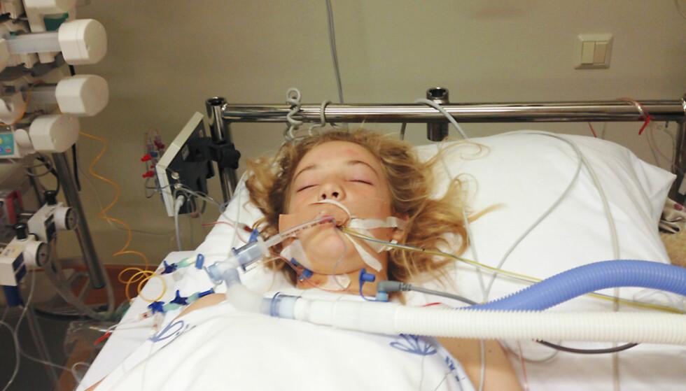 SJELDEN SKADE: Sofie ble rammet av Arterio  Venøs Malformasjon (AVM), som er en medfødt og  sjelden defekt i oppbygningen av blodårene. Foto: Privat