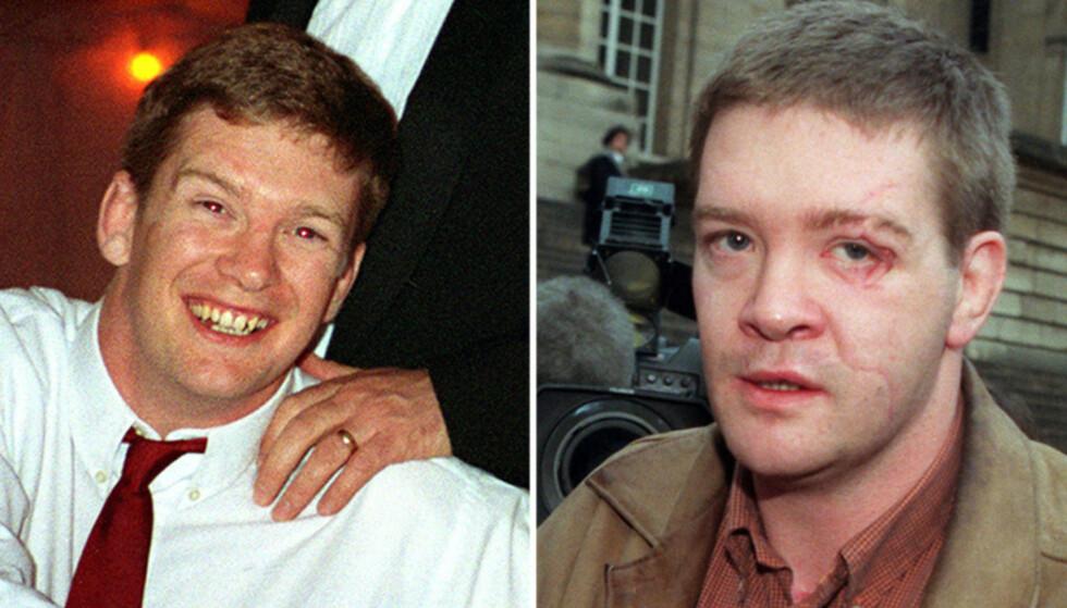 FØR OG ETTER ULYKKEN: Ansiktet til Trevor Rees-Jones ble ved hjelp av familiefotografier og titanium-plater rekonstruert gjennom omfattende operasjoner. Foto: NTB Scanpix