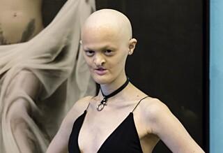 Født med sjelden genfeil - nå gjør Melanie suksess som modell