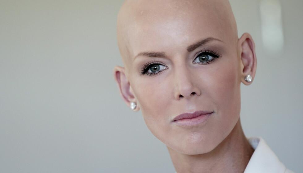 <strong>ÅPENHJERTIG:</strong> Gunhild Stordalen (38) ble alvorlig syk i 2014, da hun fikk diagnosen diffus kutan systemisk sklerose. Nå forteller hun blant annet om behandlingene i et større intervju. Foto: Lise Åserud / NTB scanpix