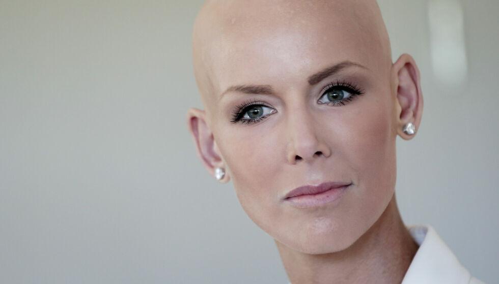 ÅPENHJERTIG: Gunhild Stordalen (38) ble alvorlig syk i 2014, da hun fikk diagnosen diffus kutan systemisk sklerose. Nå forteller hun blant annet om behandlingene i et større intervju. Foto: Lise Åserud / NTB scanpix