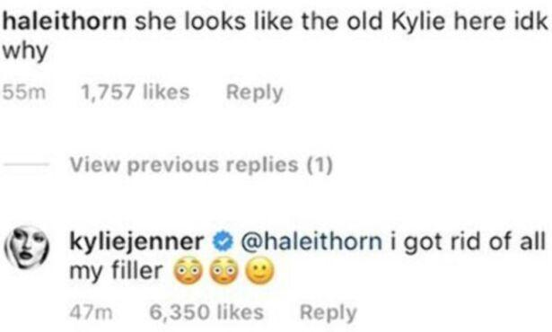FJERNET FYLLET: Her avslører Kylie at hun har fjernet fyllet i leppene sine. Foto: Skjermdump / Instagram