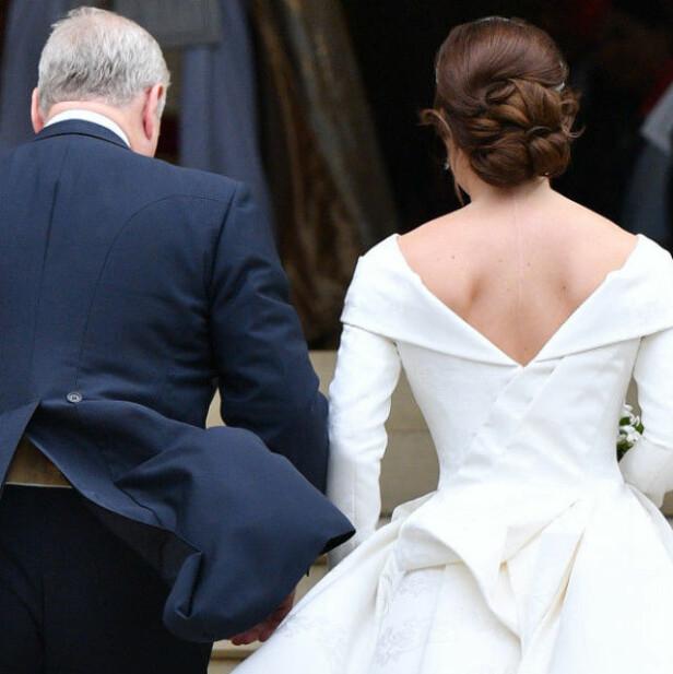 VISER FREM ARRET: Prinsesse Eugenie gar valgt et utsnitt på brudekjolen som ikke dekker til operasjonsarret hun fikk som 12-åring. Foto: NTB scanpix