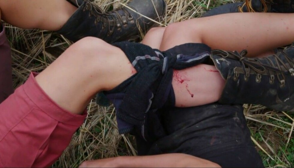<strong>BLODIG:</strong> Det begynte å blø fra såret til Sleperud, som selv svimte av da hun så skadene hun var påført. Det skulle heldigvis vise seg å ikke være spesielt alvorlig. Foto: TV 2