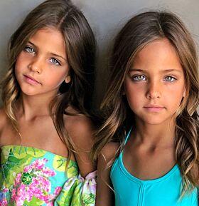 VAKRE: Jentenes slående likhet og vakre trekk har sikret dem omtale som «verdens vakreste tvillinger» i internasjonale medier. Foto: Privat