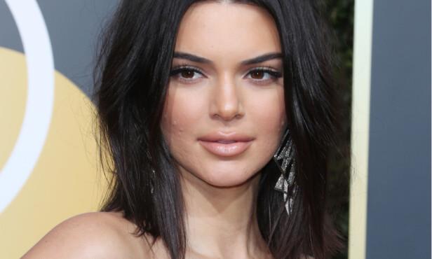 PROBLEMHUD: Kendall har valgt å være åpen om sine kviseproblemer, men flere mener nå at hun gikk litt for langt i promoteringen. Foto: NTB scanpix