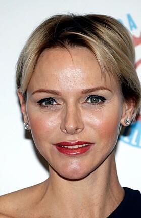 <strong>NÅ:</strong> Charlene har angivelig Botox i pannen og fillers i kinnene. Foto: NTB Scanpix