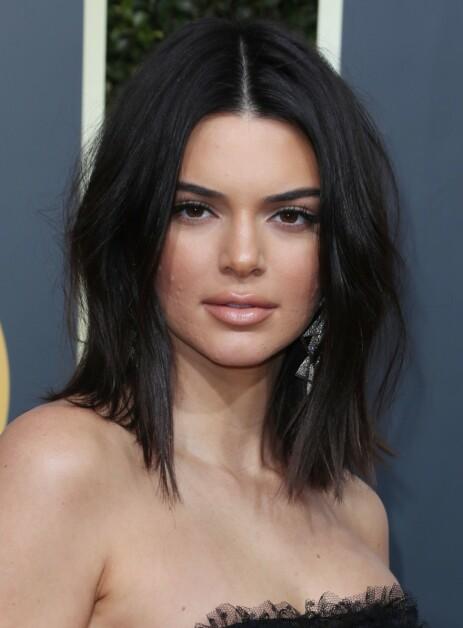 HUDPROBLEMER: Kendall Jenner har slitt med kviser i flere år, og har derfor fått massive reaksjoner. Spesielt etter fjorårets Golden Globe, da kvisene var synlige under sminken. Foto: NTB scanpix