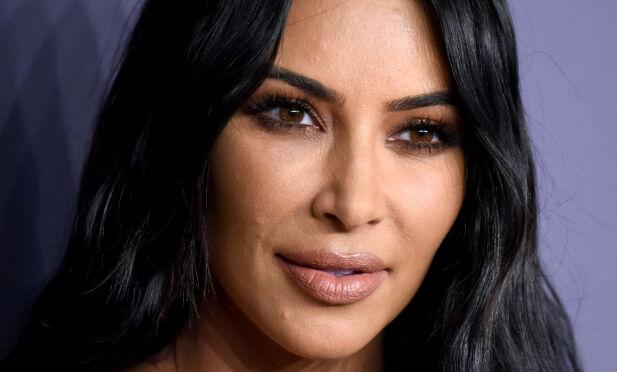 UTBRUDD: Kim Kardashian ble nylig observert med noe som kan se ut som et kviseutbrudd, men som i virkeligheten var psoriasis. Foto: NTB Scanpix