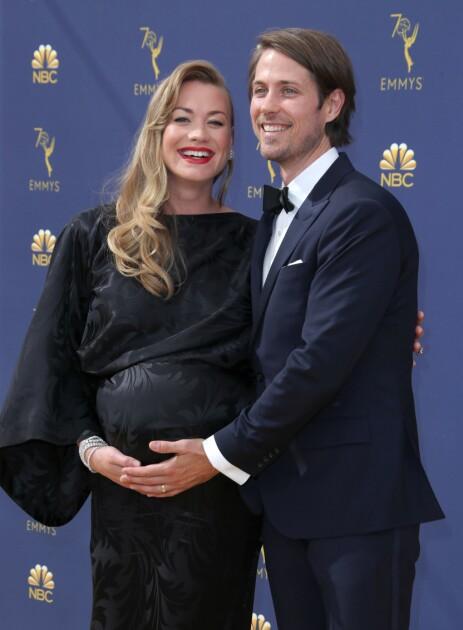 BLE FORELDRE: Ekteparet har i dag fått sitt første barn. Foto: NTB Scanpix