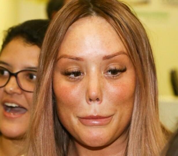 SJOKKERTE FANSEN: Bildene av realitystjernen fikk fansen til å trygle henne om å stoppe med inngrep og injeksjoner. Foto: NTB Scanpix