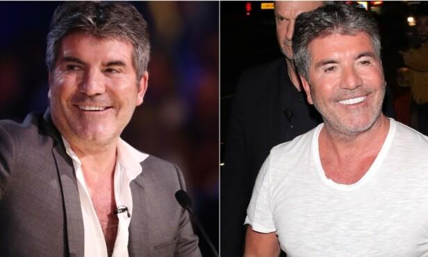 DRASTISK VEKTTAP: Stjernedommer Simon Cowell vakte stor oppsikt da han dukket opp under live-sendingen av «Britain's Got Talent». Foto: NTB scanpix