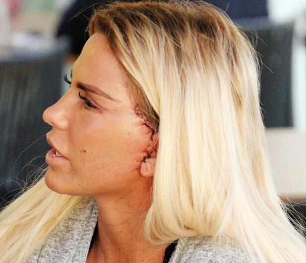 OPERERTE ANSIKTET: Nok en gang har Katie Price gjennomført en plastisk operasjon, denne gangen i ansiktet. Foto: NTB Scanpix