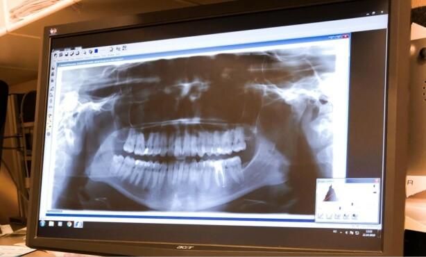 UNDERSØKELSER: Denne uken fikk Bakken svar på undersøkelsene av kjeven, som viste en forsyvning i kjevens menisk. Foto: Privat