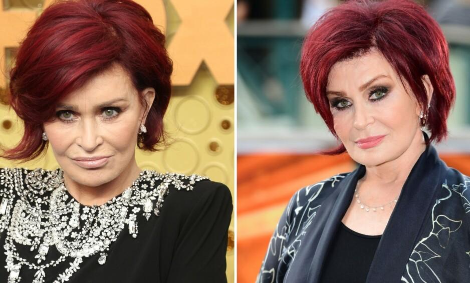 «NYTT» ANSIKT: I juni avslørte tv-personligheten Sharon Osbourne at hun skulle legge seg under kniven nok en gang for å få det hun beskrev som «et nytt ansikt». Nå er operasjonen gjennomført, men det gikk imidlertid ikke for seg uten komplikasjoner. Bildet til venstre er tatt etter det kirurgiske inngrepet, mens det til høyre er fra i fjor. Foto: NTB Scanpix