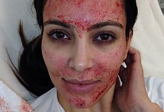 Saksøker lege seks år etter «Vampyr»-behandling