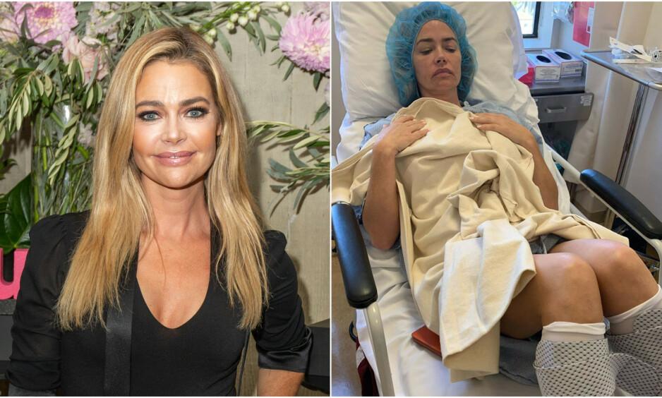 HASTEOPERERT: Realitystjernen og skuespilleren Denise Richards avslørte operasjon på Instagram. Foto: NTB Scanpix / Skjermdump fra Instagram